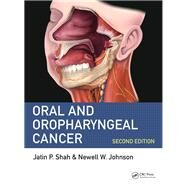 Oral Cancer: Causes, Prevention and Management of Malignancies of the Mouth and Oropharynx, Second Edition by Shah, MD, FACS; Jatin P., 9781498700085